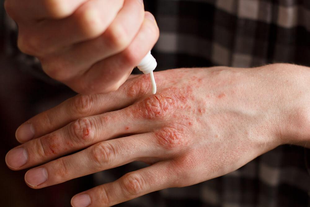 Psoríase: Os Desafios Em Tratar A Doença
