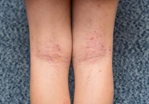Alergias pele