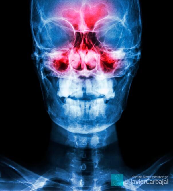 Rinossinusite Crônica e Imunodeficiência Primária / Erros Inatos do sistema Imune